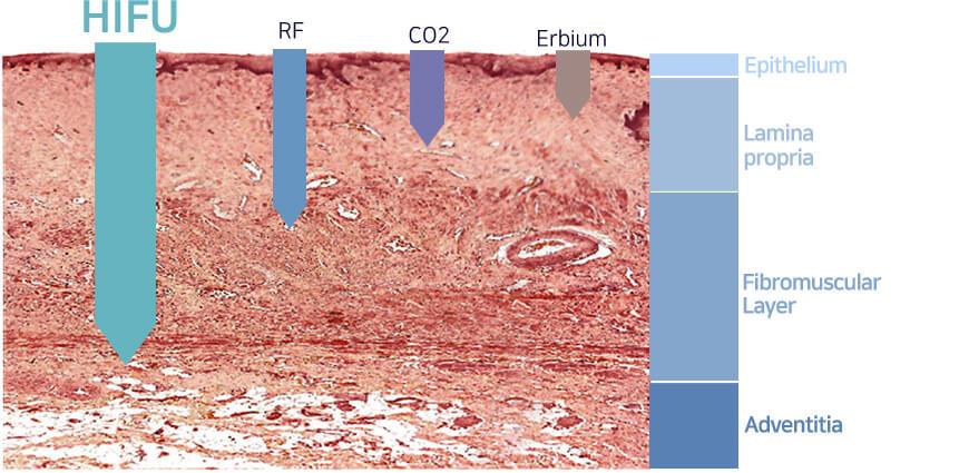 Máy nâng cơ và trẻ hóa da bằng công nghệ Hifu Double-S Hironic hình 9