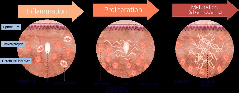Máy nâng cơ và trẻ hóa da bằng công nghệ Hifu Double-S Hironic hình 4