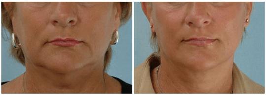 Máy nâng cơ và trẻ hóa da bằng công nghệ Hifu Double-S Hironic hình 5