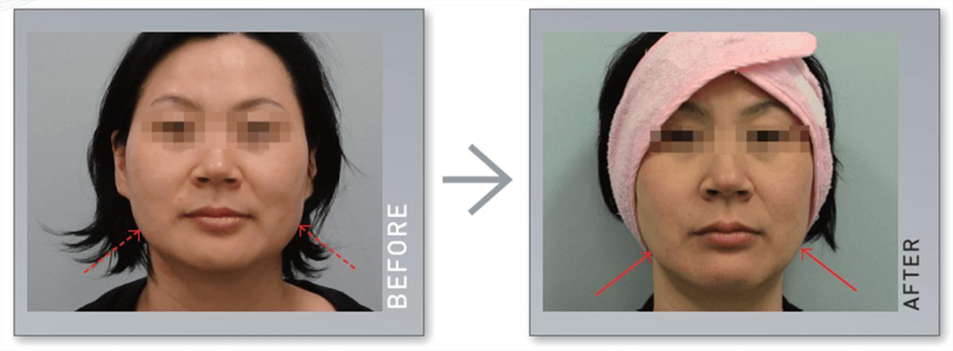 Máy nâng cơ và trẻ hóa da bằng công nghệ Hifu Double-S Hironic hình 6