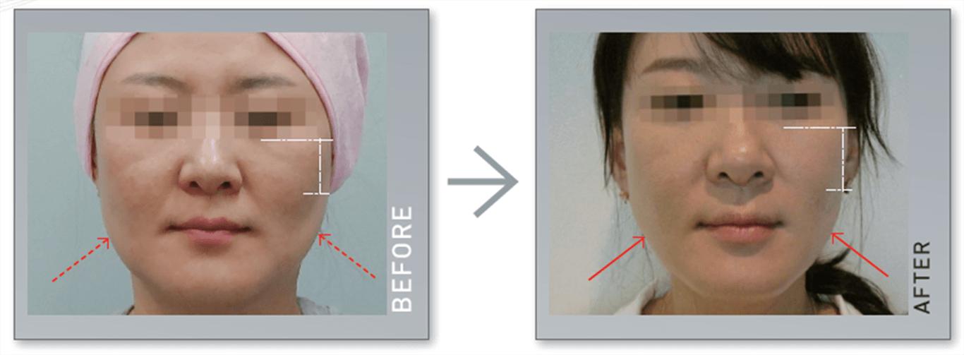 Máy nâng cơ và trẻ hóa da bằng công nghệ Hifu Double-S Hironic hình 7